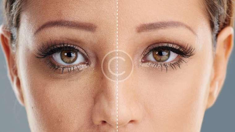 5 Genius Ways to Make Your Pores Smaller